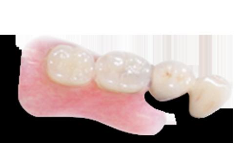 アタッチメント義歯・アセタル義歯